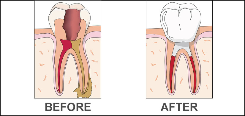 image-rootcanal