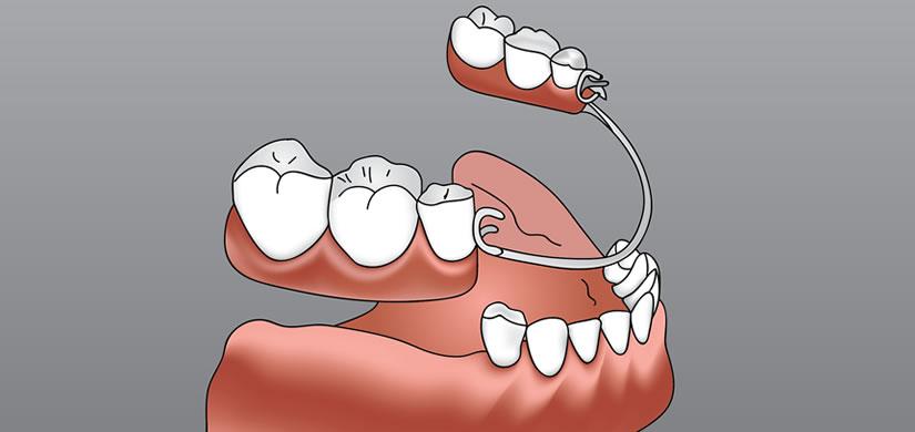 image-dentures